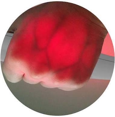 Venta de localizadores de venas